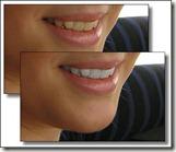 скачать плагин для отбеливания зубов
